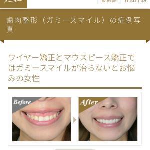 有村藍里 - 有村架純の姉は歯茎を焼き切って、形を整えていた