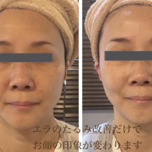 使うのは指二本だけ!簡単お顔のたるみ改善マッサージ