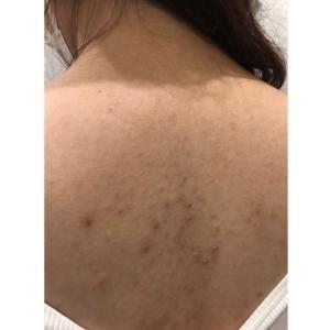 背中のニキビ、ニキビ跡、毛孔性苔癬、下肢静脈瘤