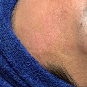 アトピー性皮膚炎、ニキビ肌でお悩みの方