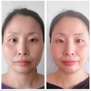 香港マスク生活:オンラインで顔ヨガ受けてみた結果