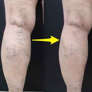 20年前に他院でストリッピング手術(血管を抜く)。再発した症例をレーザー手術できれいに治す!!