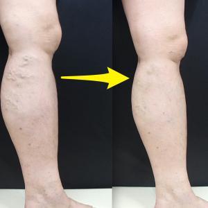 両足を受けたが痛みはなくスムーズに手術が行われた。先生も少し進めると都度確認をしてくれるので・・