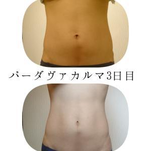 肥満治療用ハーブ/パーダヴァカルマの威力!