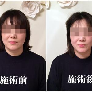 小顔美容矯正★施術例写真