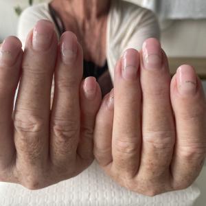 自爪が弱いかたのフィルイン施術