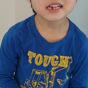 歯が抜けました!