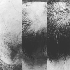 脱毛症改善はスムーズでないのが普通です!