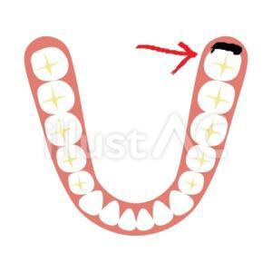 試供品歯ブラシ