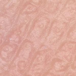 【マイクロスコープの斉藤光学です】手のひらの汗腺を観察してみました。