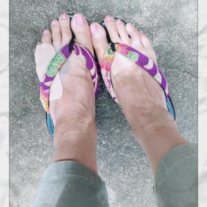やはり、左足小指は骨折してました
