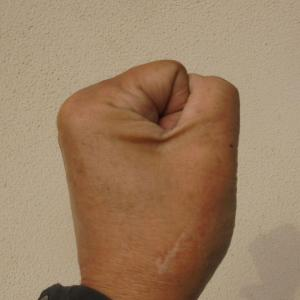 母指CM関節症の手術から丁度1年経過