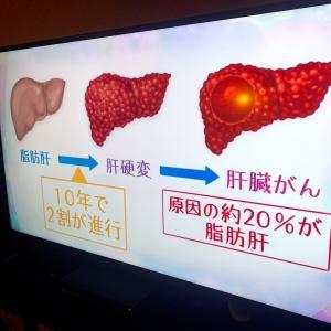 脂肪肝は生活習慣病。