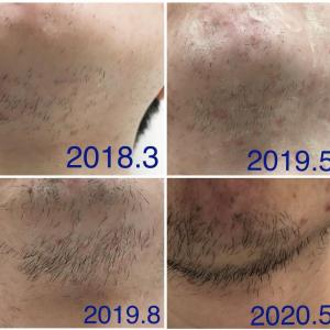 髭の変化(画像記録)