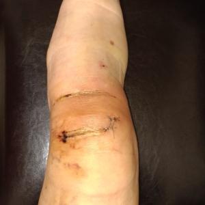 前十字靭帯再建手術 手術11日目 初出勤