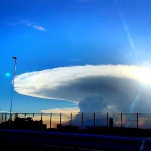 かなとこ雲と胃カメラ。