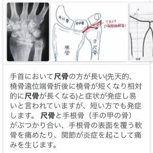 手首痛、、、腱鞘炎じゃなかった(^◇^;)。