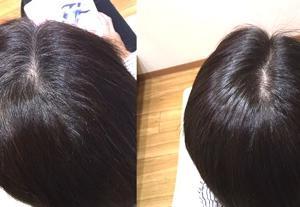 白髪を健康的に染める3つのコツ