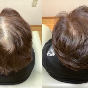 パサつく、ツヤない、悩みの髪をジカルボン酸使って白髪染め✨