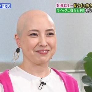 【画像】女性(40)「クセになってんだ、毛抜くのwwwwwwwwwwww」