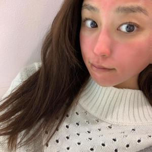 【悲報】岡副麻希、痛々しい顔面を公開 美容治療で真っ赤っ赤に
