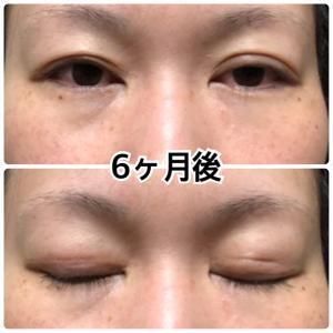 眼瞼下垂 6ヶ月後
