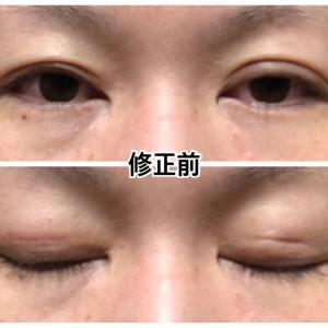 眼瞼下垂他院修正手術