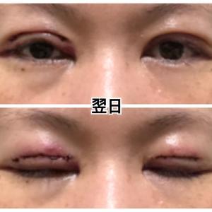 眼瞼下垂修正手術【翌日】