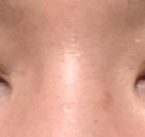 眼瞼下垂 修正手術 1ヶ月後