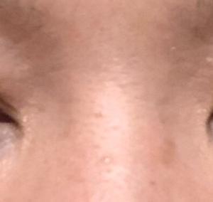 【2ヶ月】眼瞼下垂 修正手術