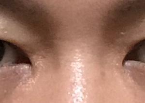 【眼瞼下垂】修正手術をすることになりました。