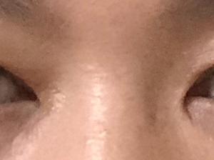 眼瞼下垂修正 5日目【抜糸】