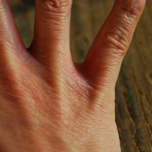 原因不明の肌荒れは辛い!ためしてガッテン流 諦めていた人の治療法