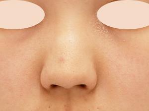わし鼻があるもったりゴツめの鼻を自然にスッキリ