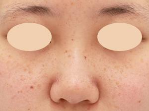自然にバランスの良い鼻に☆リピータさんの鼻複合OP・鼻中隔延長など