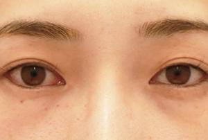 【2019上半期 北海道東北 切開二重No.1】他院埋没2回とれて…眼瞼下垂+目頭目尻たれ目+α