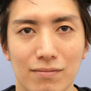 【2019上半期 北海道東北 切開二重No.1】Dr.米ヶ田 MD式眼瞼下垂+たるみ取り