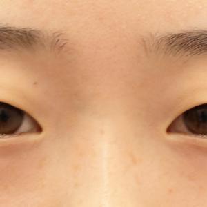 【2019年上半期 北海道東北No.1】アーモンドアイ作成☆QCW+デカ目術 18歳女性