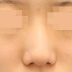 芸能人も指名の鼻整形☆ノーズクリエイターによる プロテーゼ+鼻尖形成+鼻尖部軟骨移植+ワシ鼻修正