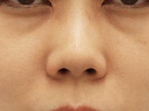 宮城県40歳のメイクでは隠れないクマ撲滅!目の下の切らないたるみとり+コンデンスリッチフェイス