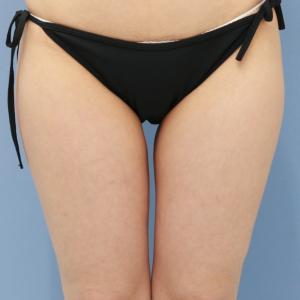 旦那さんに後押しされて美脚を手に入れた 岩手県37歳女性の★ベイザー脂肪吸引 大腿+臀部+膝
