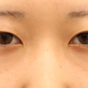 【19上半期 北海道東北 切開No.1】埋没法じゃ無理な 眼瞼下垂+Awi+尻切+下眼瞼+α