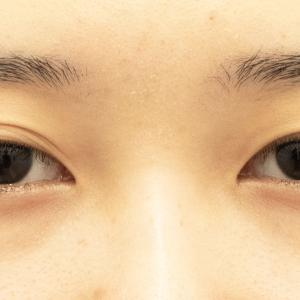 右眼に合わせて左も幅広平行型にしたい20歳女性のQCW+デカ目術