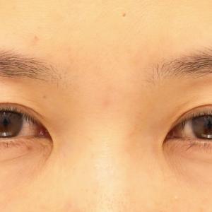 【2020上半期北海道東北 眉下リフト2位】38歳女性瞼のたるみをなくす MD式眉下リフト