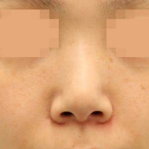 #ノーズクリエイター 33歳女性のプロテーゼ+3D鼻尖形成+鼻尖部軟骨移植+鼻中隔延長