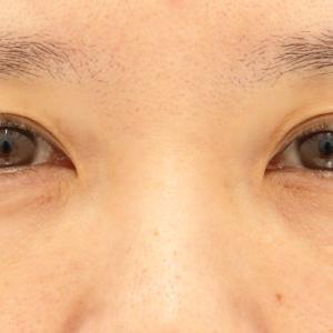 がっちりたれ目にしたい! 山形県41歳女性 MD式目頭切開+目尻切開+たれ目形成