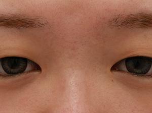 SNSで症例を見て決心してくれた秋田県・25歳女性★MD式眼瞼下垂+たるみ取り