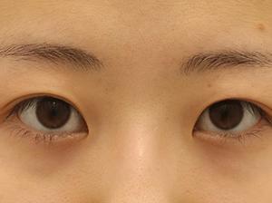 不安は診察で払拭して切開を決意した22歳秋田県女性★たるみ取り併用全切開二重術