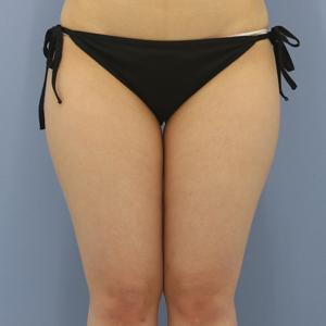 脂肪を限界までとった岩手県21歳女性★アキーセル脂肪吸引 太もも・お尻・膝まわり