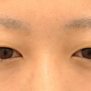 少し眠そうでも全切開で施術したい宮城県24歳女性★たるみ取り併用全切開二重術